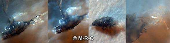Morgellons Morphology
