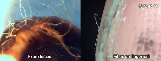 Morgelllons fibers in stool