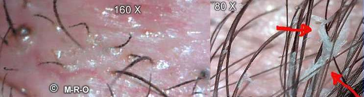 Morgellons Skin-Infection-Process by Fibers and Biofilm