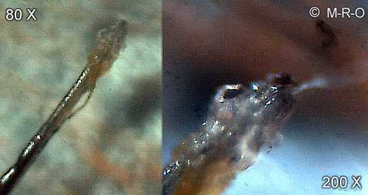 Root Hairs Microscope Hair Root Morgellons