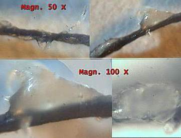 Morgellons Morphology