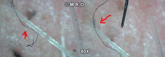 Morgellons disease factors to acquire or to promote Morgellons disease