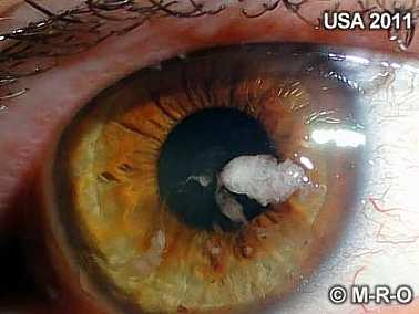 Morgellons skin lesions wounds eye infections