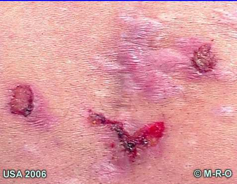 morgellons afflicted pictures of skin lesions wounds