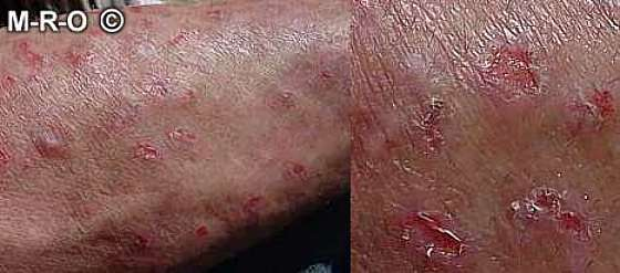 Herpes Virus Gives Man a Blistery Finger Infection