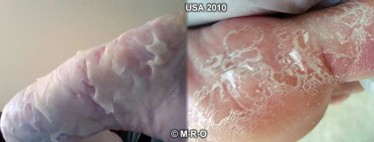 http://www.morgellons-research.org/morgellons2/pics/morgellons-lyme4.jpg