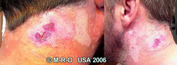 http://www.morgellons-research.org/morgellons2/pics/morgellons-wounds1.jpg